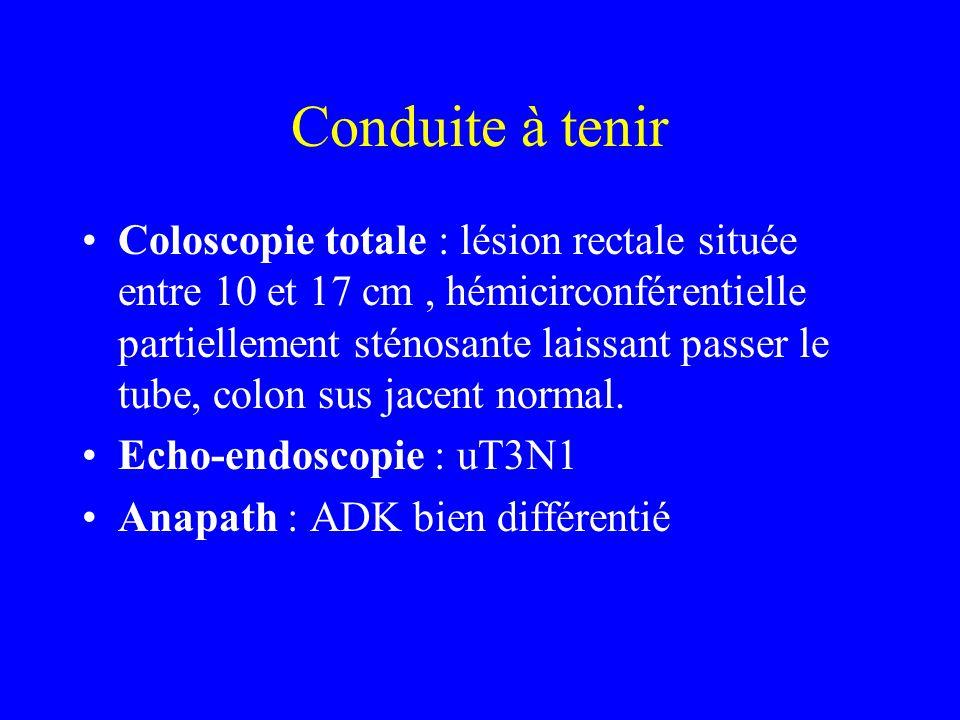 Conduite à tenir Coloscopie totale : lésion rectale située entre 10 et 17 cm, hémicirconférentielle partiellement sténosante laissant passer le tube, colon sus jacent normal.