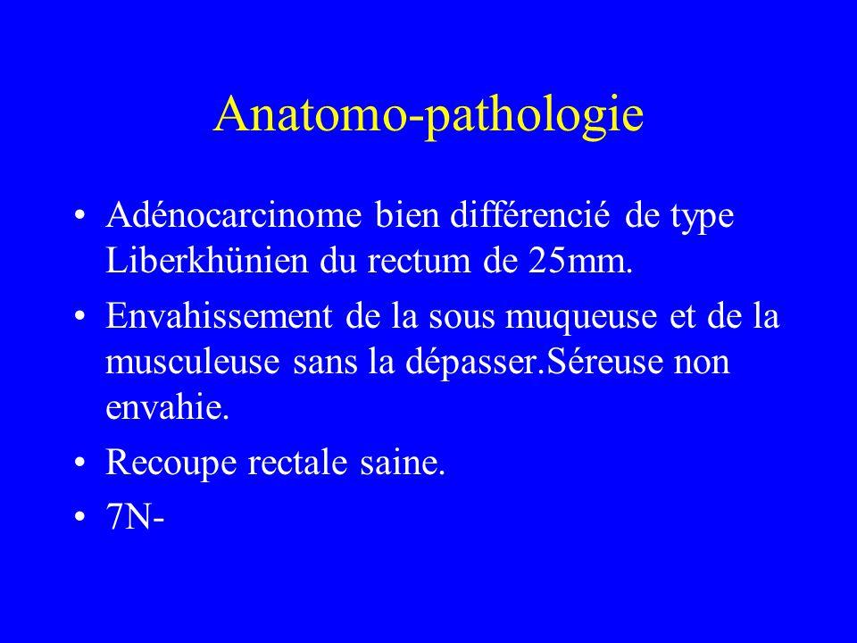 Anatomo-pathologie Adénocarcinome bien différencié de type Liberkhünien du rectum de 25mm.