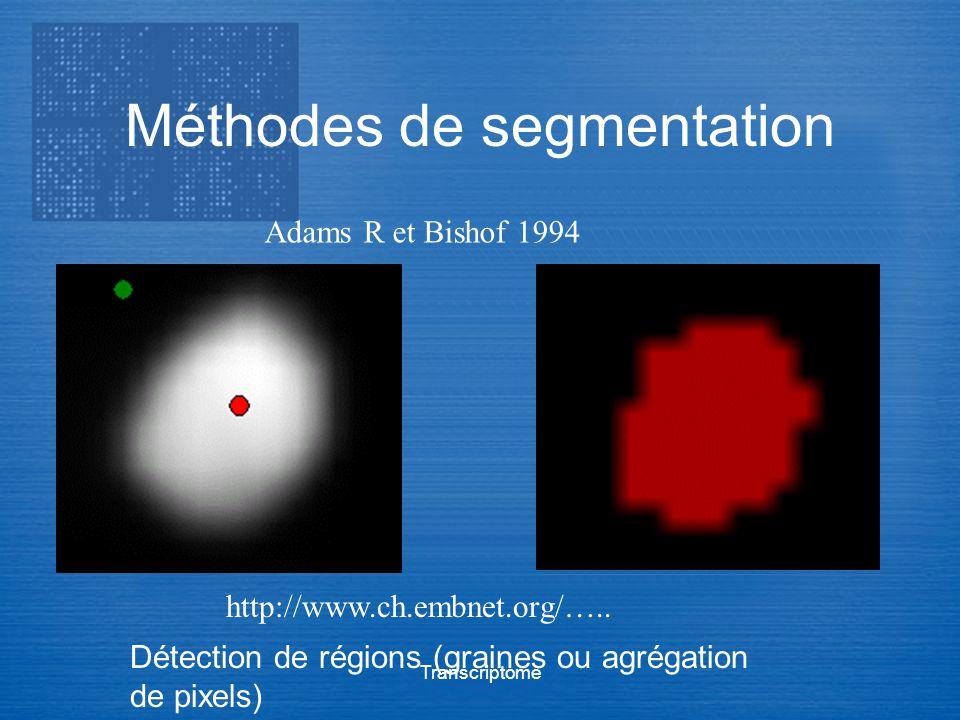 Transcriptome Méthodes de segmentation Adams R et Bishof 1994 http://www.ch.embnet.org/….. Détection de régions (graines ou agrégation de pixels)