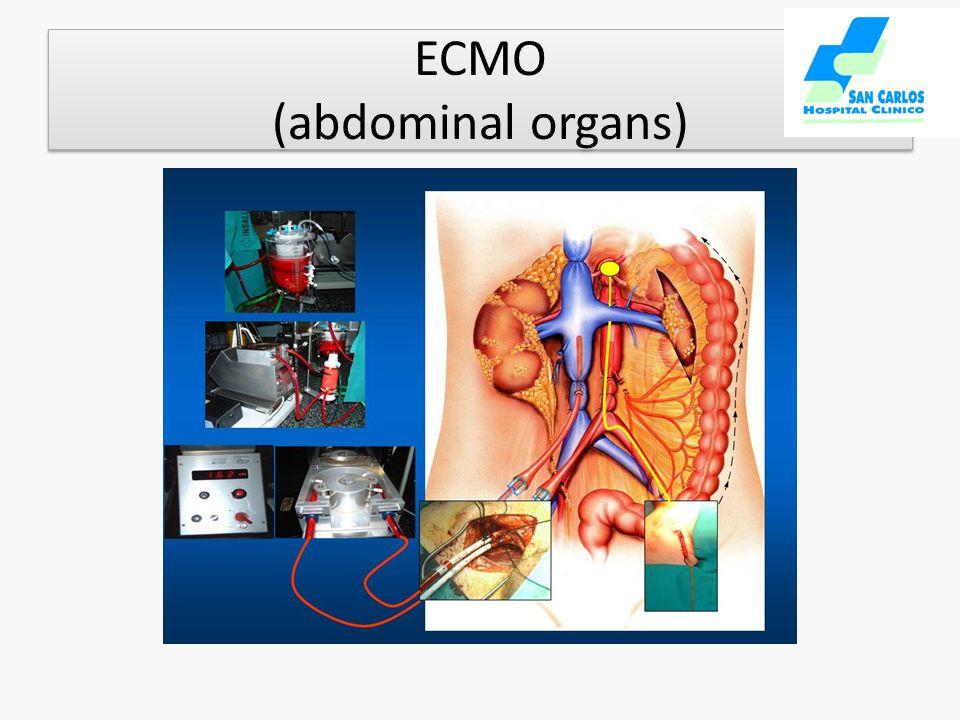 ECMO (abdominal organs)