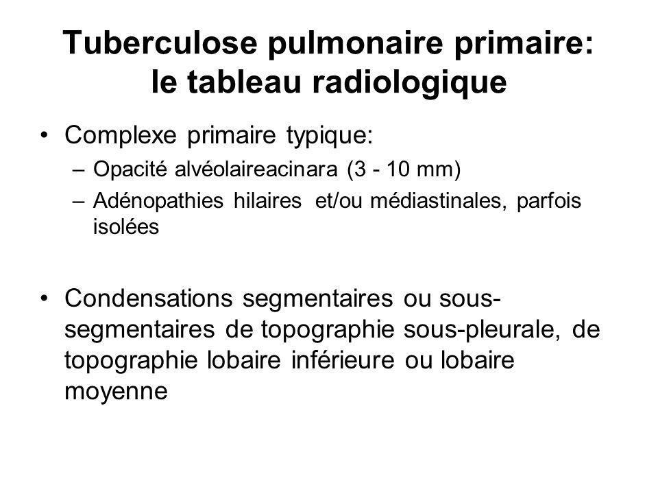 Tuberculose pulmonaire primaire: le tableau radiologique Complexe primaire typique: –Opacité alvéolaireacinara (3 - 10 mm) –Adénopathies hilaires et/ou médiastinales, parfois isolées Condensations segmentaires ou sous- segmentaires de topographie sous-pleurale, de topographie lobaire inférieure ou lobaire moyenne