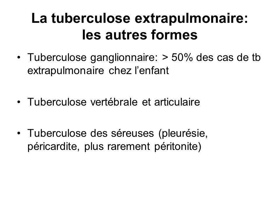 La tuberculose extrapulmonaire: les autres formes Tuberculose ganglionnaire: > 50% des cas de tb extrapulmonaire chez lenfant Tuberculose vertébrale et articulaire Tuberculose des séreuses (pleurésie, péricardite, plus rarement péritonite)