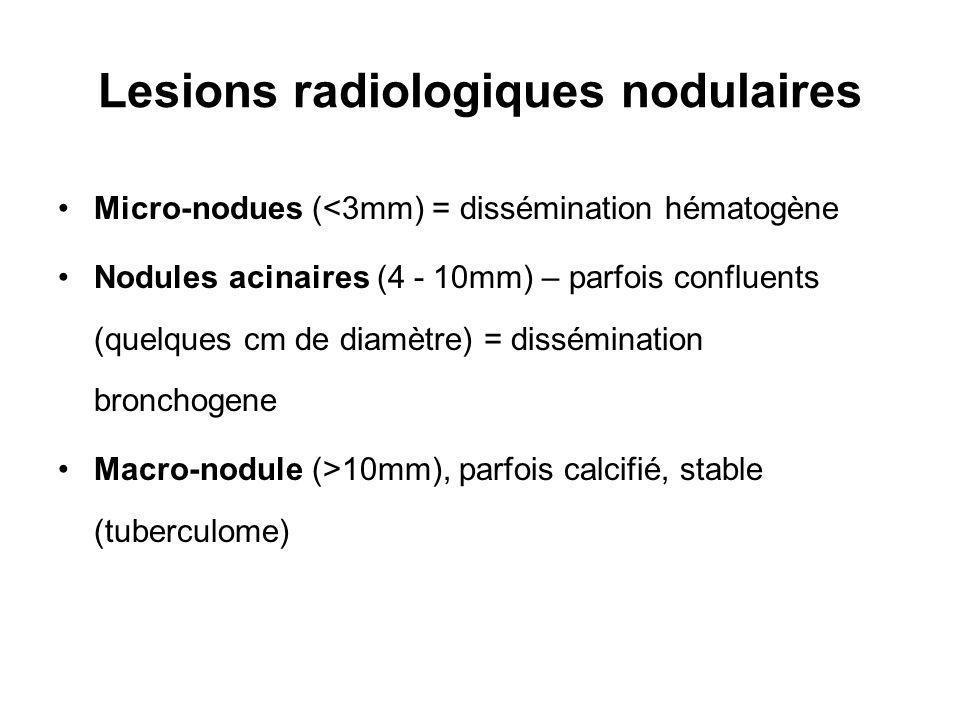 Lesions radiologiques nodulaires Micro-nodues (<3mm) = dissémination hématogène Nodules acinaires (4 - 10mm) – parfois confluents (quelques cm de diamètre) = dissémination bronchogene Macro-nodule (>10mm), parfois calcifié, stable (tuberculome)