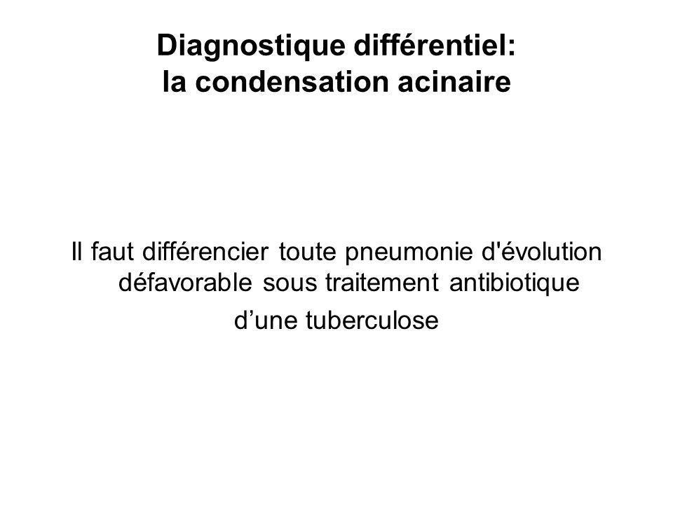 Diagnostique différentiel: la condensation acinaire Il faut différencier toute pneumonie d évolution défavorable sous traitement antibiotique dune tuberculose