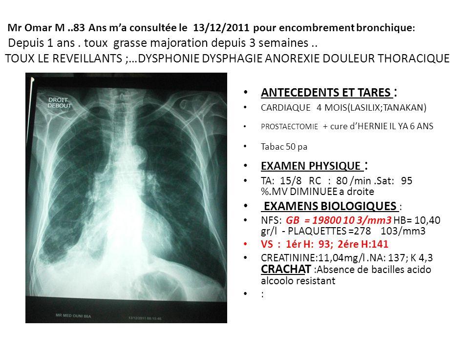 Mr Omar M..83 Ans ma consultée le 13/12/2011 pour encombrement bronchique : Depuis 1 ans. toux grasse majoration depuis 3 semaines.. TOUX LE REVEILLAN