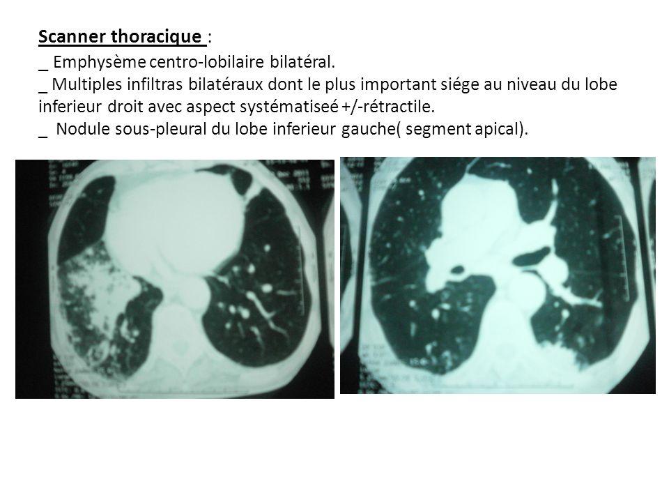 Scanner thoracique : _ Emphysème centro-lobilaire bilatéral. _ Multiples infiltras bilatéraux dont le plus important siége au niveau du lobe inferieur