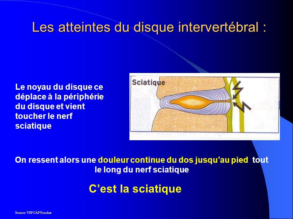 Le noyau du disque ce déplace à la périphérie du disque et vient toucher le nerf sciatique On ressent alors une douleur continue du dos jusquau pied t