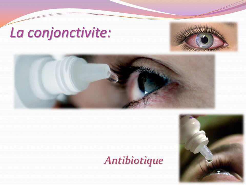 La conjonctivite: Antibiotique