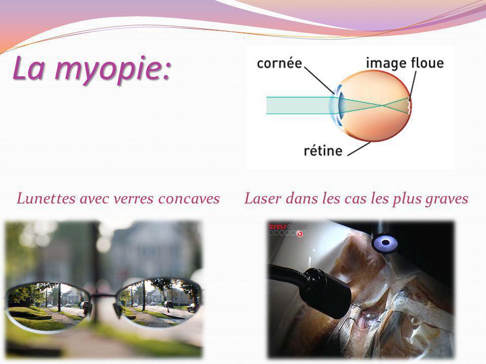 La myopie: Lunettes avec verres concavesLaser dans les cas les plus graves