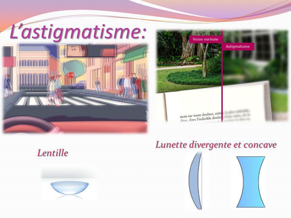 Lastigmatisme: Lunette divergente et concave Lentille