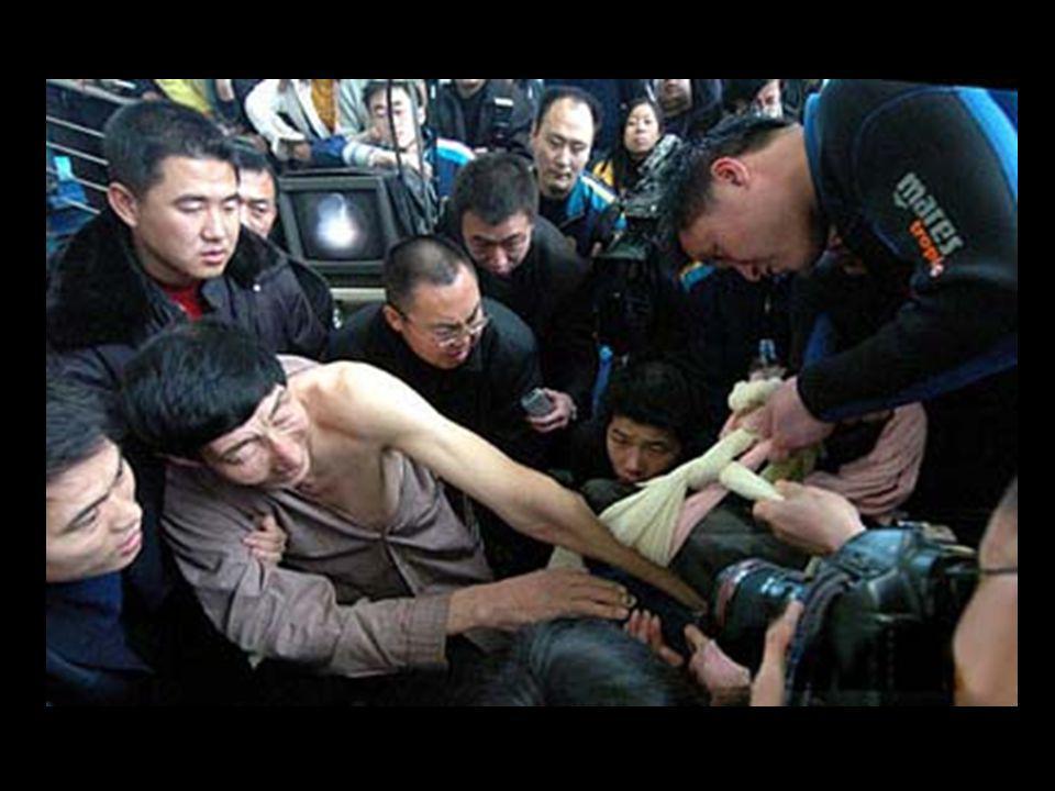 Une assistante pensa alors à convoquer Xishun qui, avec ses bras de 1,10 mètre, réussit à retirer avec précaution les plastiques logés profondément, t