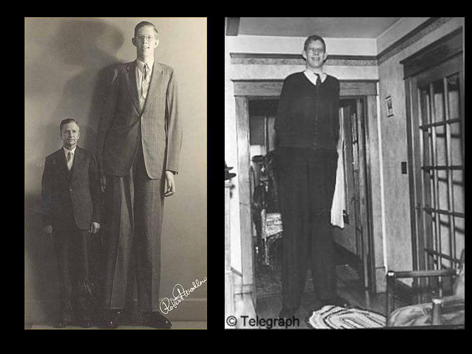 Ces deux géants sont impressionnants ! Mais n'oublions pas Robert Wadlow (1918-1940), décédé à l'âge de 22ans alors qu'il continuait régulièrement de