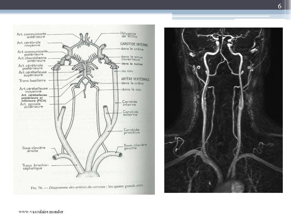 6 www.vasculaire.mondor