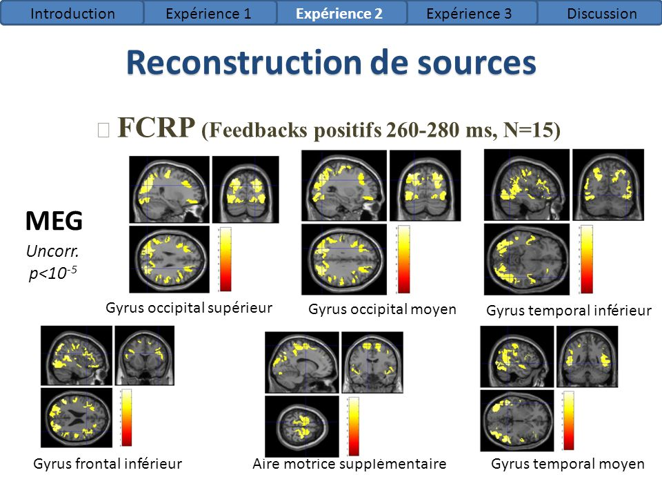Literature review Dorsal PCC Donamayor et al, 2011/2012 Gambling task / Time-reaction task MEG / simultaneous EEG-MEG Reconstruction of the difference between bad and good feedbacks with LORETA 250-315 ms Bellebaum et al, 2008 strategy task EEG Reconstruction of the difference between bad and good feedbacks with LORETA 230-270 ms Ferrez et al, 2008 Simulated BCI EEG Reconstruction of the difference between bad and good feedbacks with LORETA Rostral cingulate zone (ACC) et pre-SMA 250 ms 300 ms (unexp.