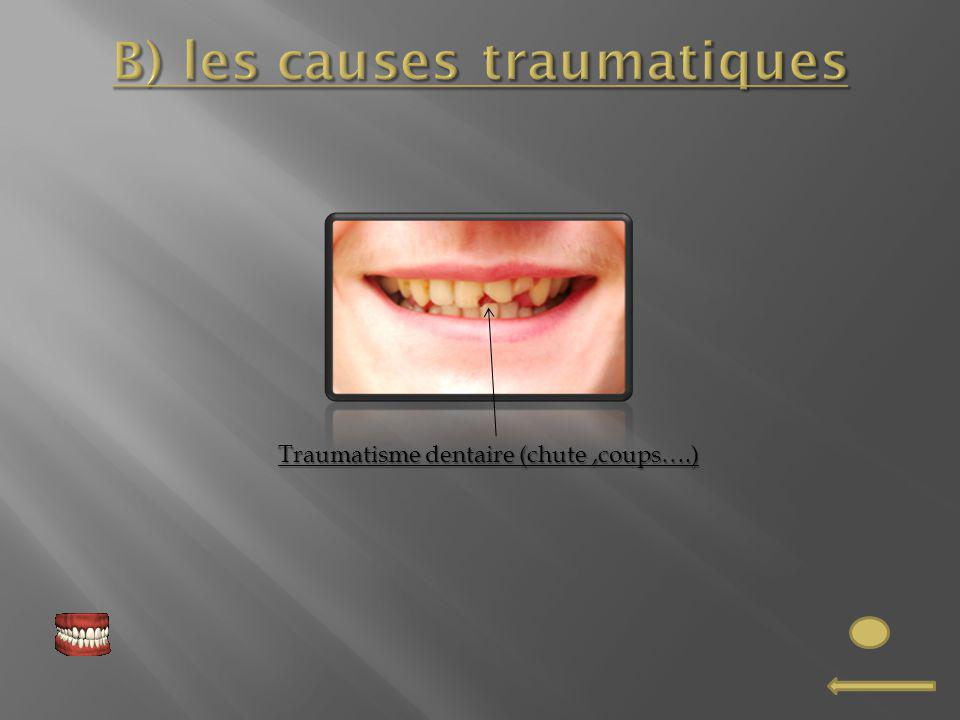 Traumatisme dentaire (chute,coups….)