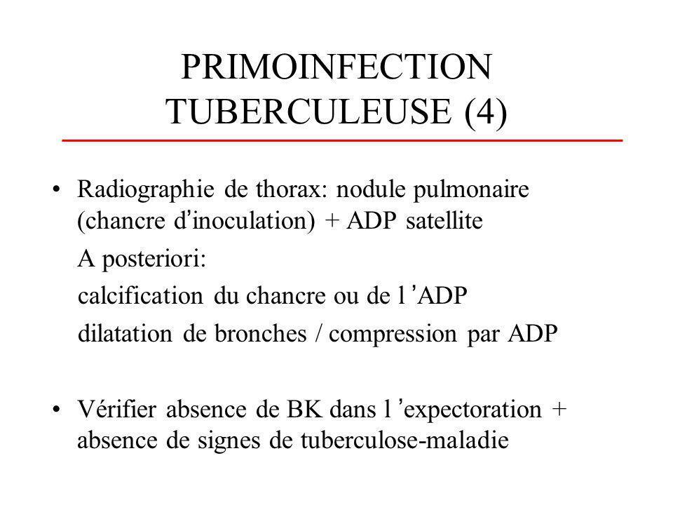 PRIMOINFECTION TUBERCULEUSE (4) Radiographie de thorax: nodule pulmonaire (chancre dinoculation) + ADP satellite A posteriori: calcification du chancr