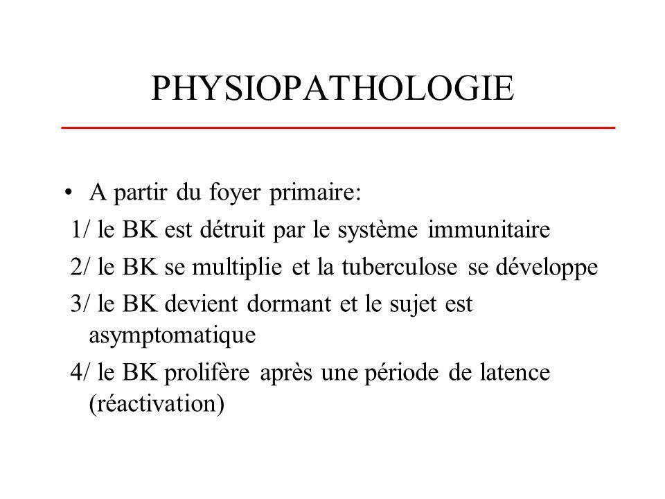 PHYSIOPATHOLOGIE A partir du foyer primaire: 1/ le BK est détruit par le système immunitaire 2/ le BK se multiplie et la tuberculose se développe 3/ l
