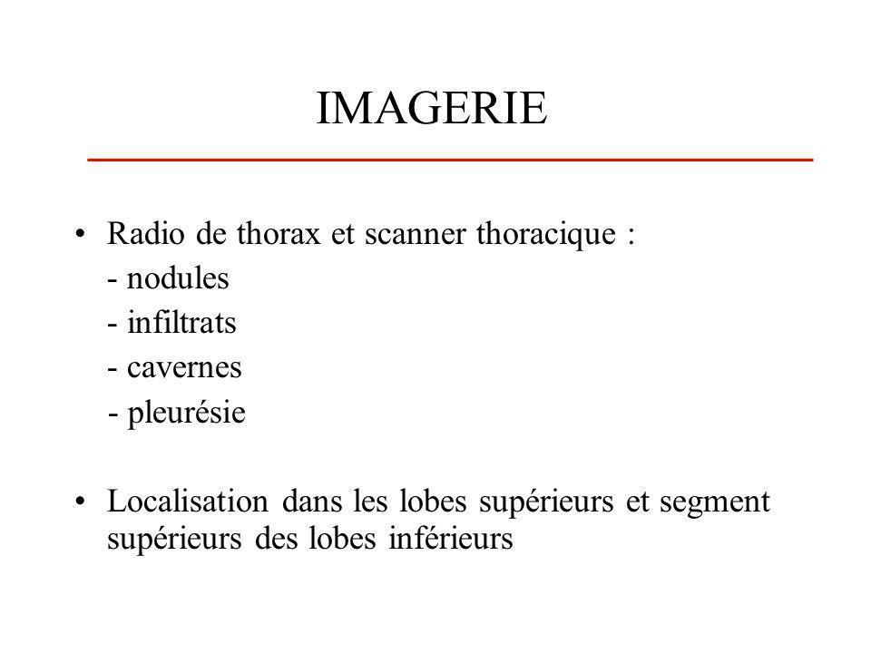 IMAGERIE Radio de thorax et scanner thoracique : - nodules - infiltrats - cavernes - pleurésie Localisation dans les lobes supérieurs et segment supér
