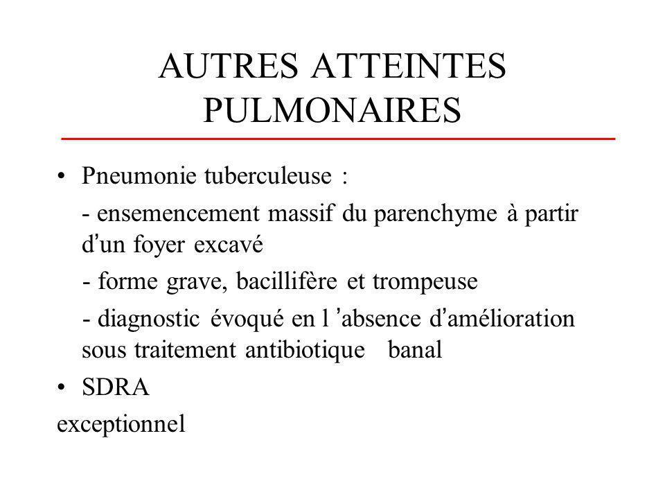 AUTRES ATTEINTES PULMONAIRES Pneumonie tuberculeuse : - ensemencement massif du parenchyme à partir dun foyer excavé - forme grave, bacillifère et tro
