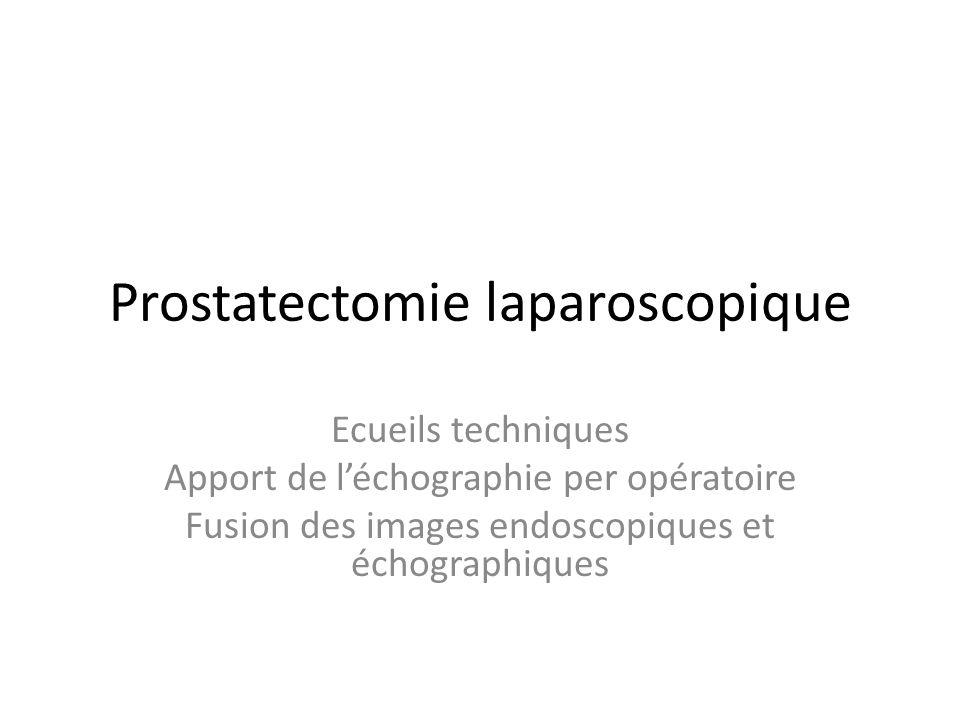 Prostatectomie laparoscopique Ecueils techniques Apport de léchographie per opératoire Fusion des images endoscopiques et échographiques