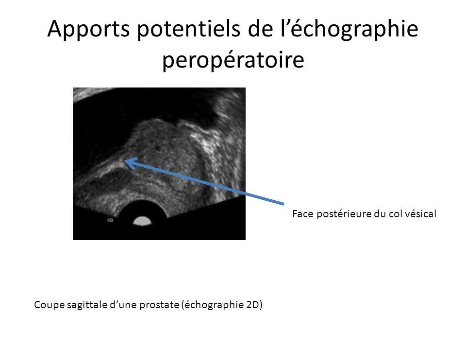 Apports potentiels de léchographie peropératoire Coupe sagittale dune prostate (échographie 2D) Face postérieure du col vésical