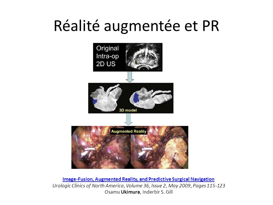 Réalité augmentée et PR Image-Fusion, Augmented Reality, and Predictive Surgical Navigation Image-Fusion, Augmented Reality, and Predictive Surgical N