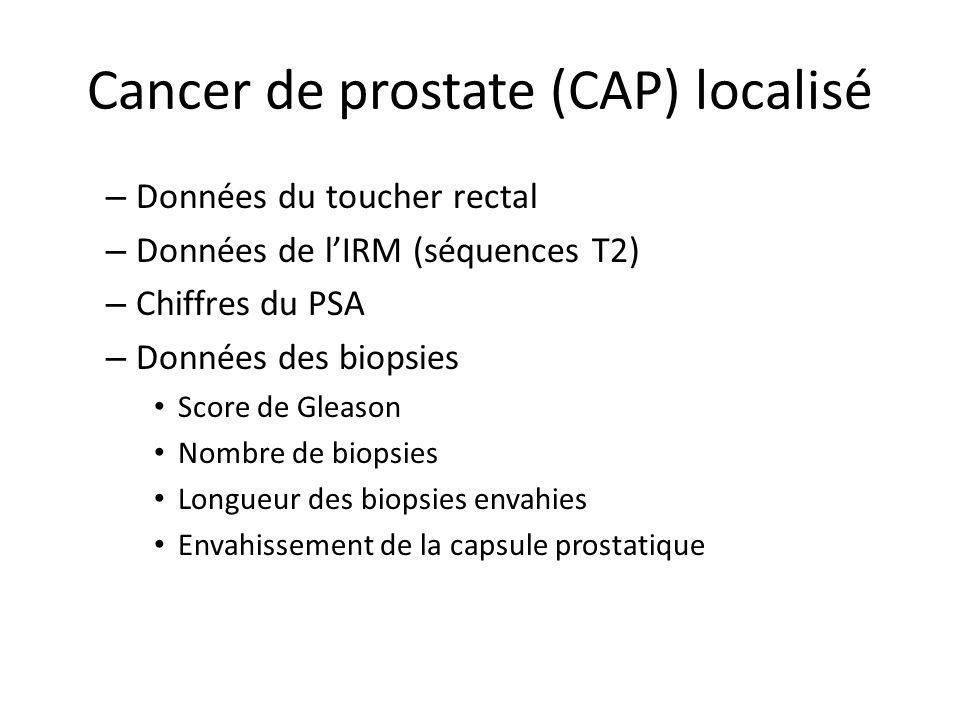 Cancer de prostate (CAP) localisé – Données du toucher rectal – Données de lIRM (séquences T2) – Chiffres du PSA – Données des biopsies Score de Gleas