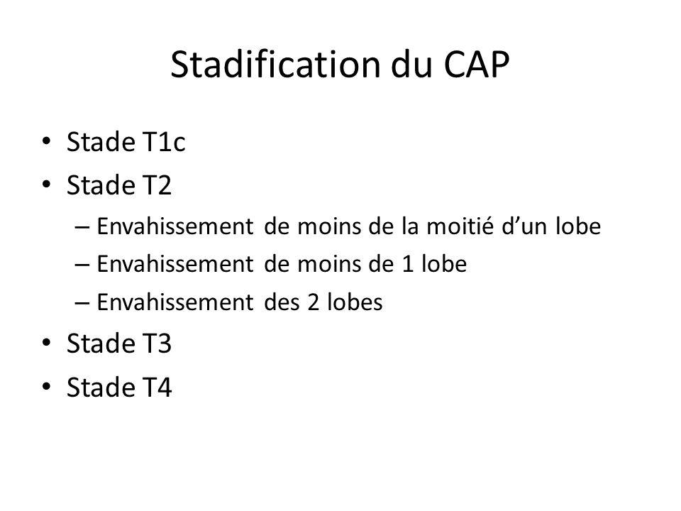 Stadification du CAP Stade T1c Stade T2 – Envahissement de moins de la moitié dun lobe – Envahissement de moins de 1 lobe – Envahissement des 2 lobes