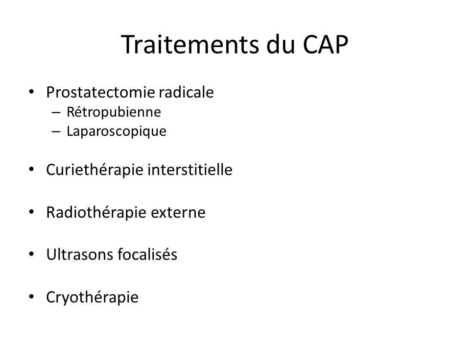 Traitements du CAP Prostatectomie radicale – Rétropubienne – Laparoscopique Curiethérapie interstitielle Radiothérapie externe Ultrasons focalisés Cry