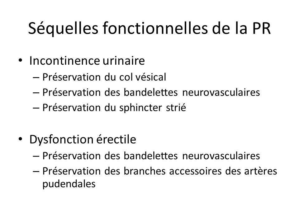 Séquelles fonctionnelles de la PR Incontinence urinaire – Préservation du col vésical – Préservation des bandelettes neurovasculaires – Préservation d