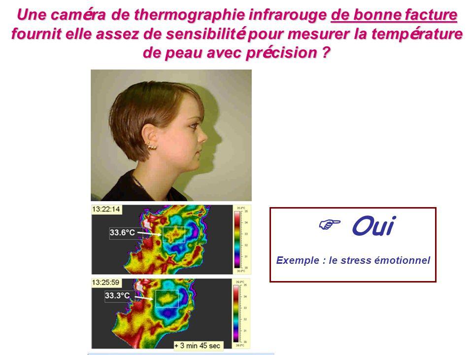 Une cam é ra de thermographie infrarouge de bonne facture fournit elle assez de sensibilit é pour mesurer la temp é rature de peau avec pr é cision ?