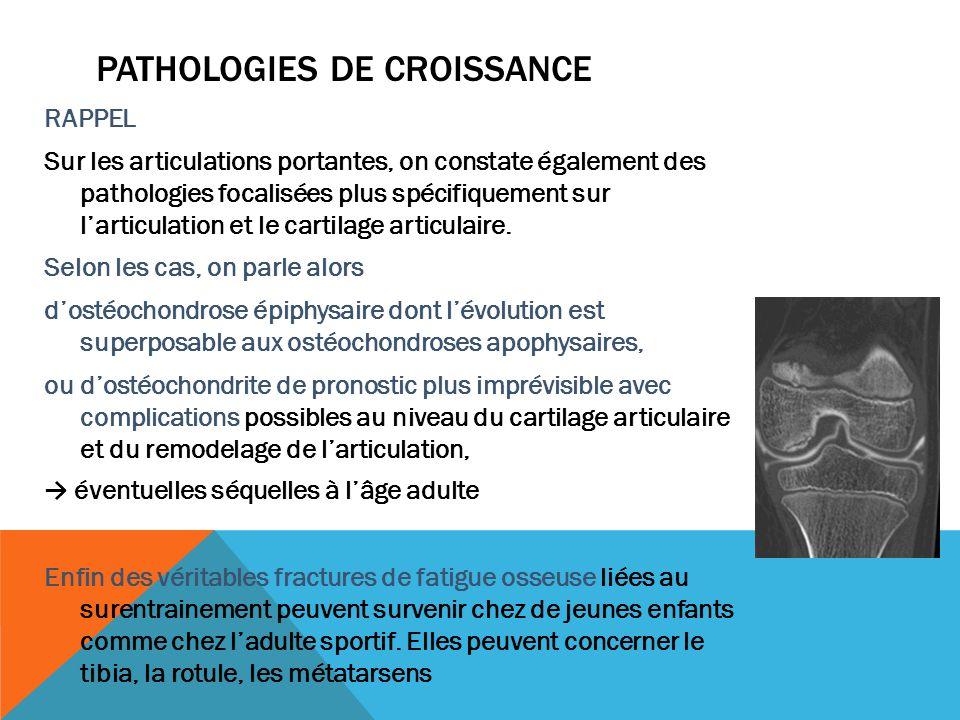 PATHOLOGIES DE CROISSANCE RAPPEL Sur les articulations portantes, on constate également des pathologies focalisées plus spécifiquement sur larticulati