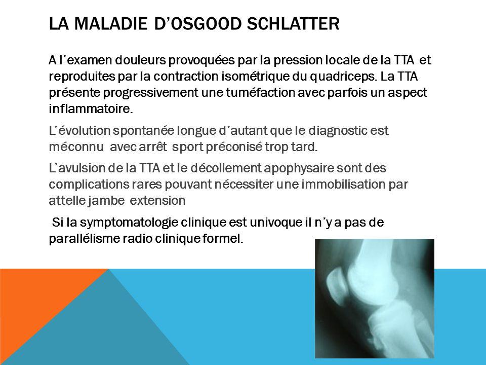 LA MALADIE DOSGOOD SCHLATTER A lexamen douleurs provoquées par la pression locale de la TTA et reproduites par la contraction isométrique du quadricep
