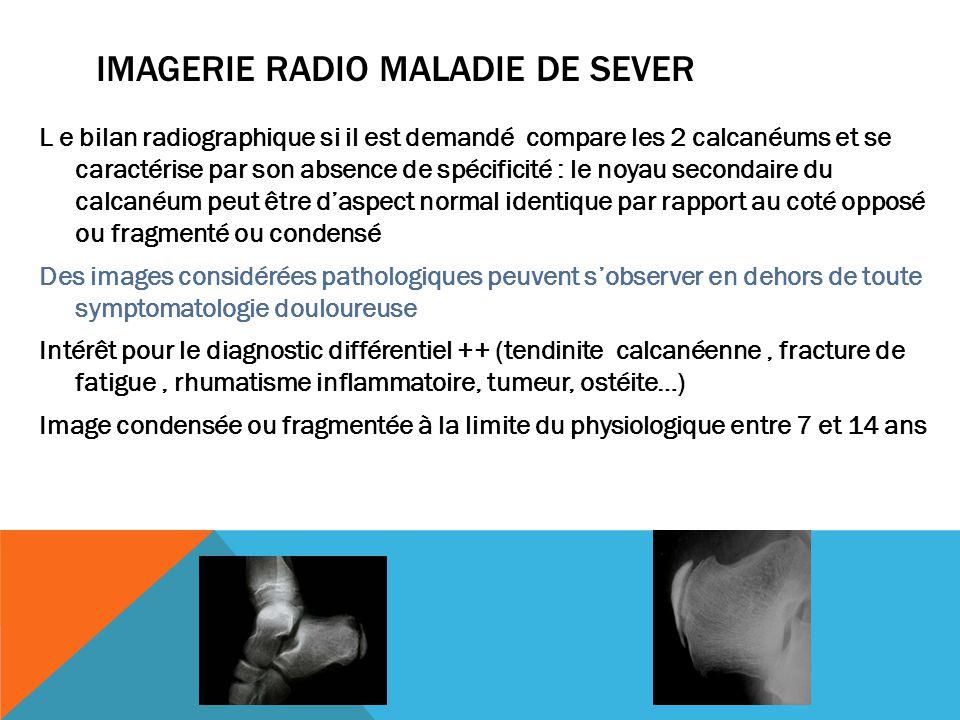 IMAGERIE RADIO MALADIE DE SEVER L e bilan radiographique si il est demandé compare les 2 calcanéums et se caractérise par son absence de spécificité :