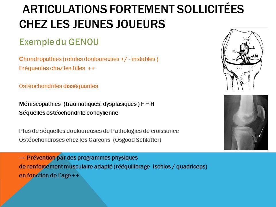 ARTICULATIONS FORTEMENT SOLLICITÉES CHEZ LES JEUNES JOUEURS Exemple du GENOU C hondropathies (rotules douloureuses +/ - instables ) Fréquentes chez le