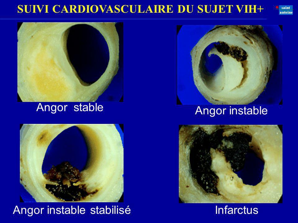 SUIVI CARDIOVASCULAIRE DU SUJET VIH+ saint antoine Angor stable Angor instable Angor instable stabiliséInfarctus