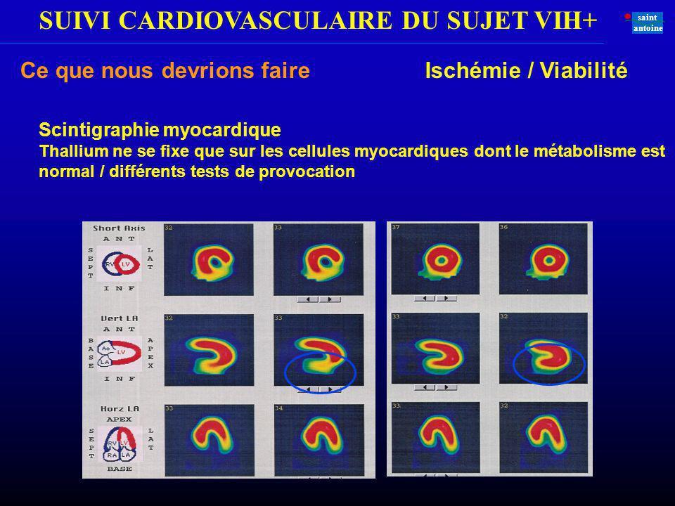 SUIVI CARDIOVASCULAIRE DU SUJET VIH+ saint antoine Ce que nous devrions faire Ischémie / Viabilité Scintigraphie myocardique Thallium ne se fixe que s
