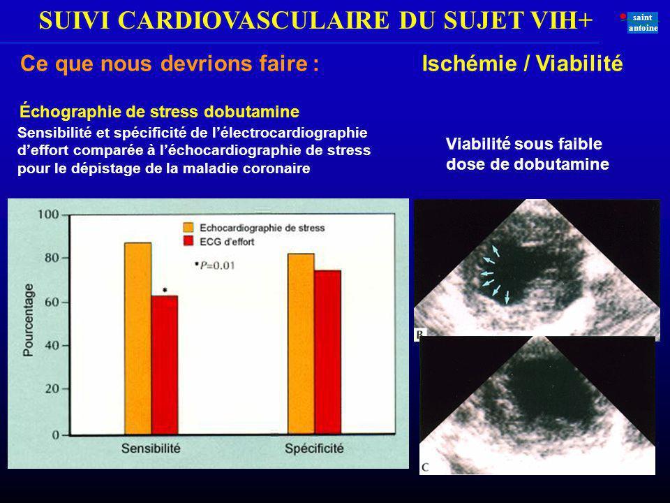 SUIVI CARDIOVASCULAIRE DU SUJET VIH+ saint antoine Sensibilité et spécificité de lélectrocardiographie deffort comparée à léchocardiographie de stress