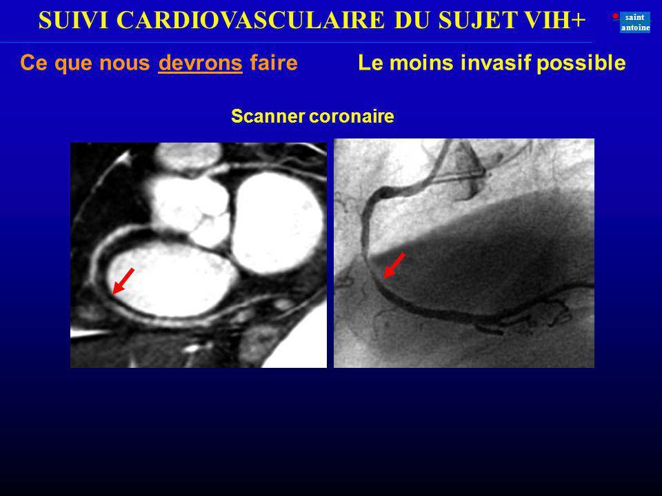 SUIVI CARDIOVASCULAIRE DU SUJET VIH+ saint antoine Ce que nous devrons faire Le moins invasif possible Scanner coronaire