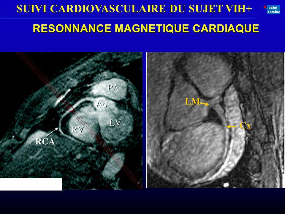 SUIVI CARDIOVASCULAIRE DU SUJET VIH+ saint antoine RESONNANCE MAGNETIQUE CARDIAQUE LM Cx