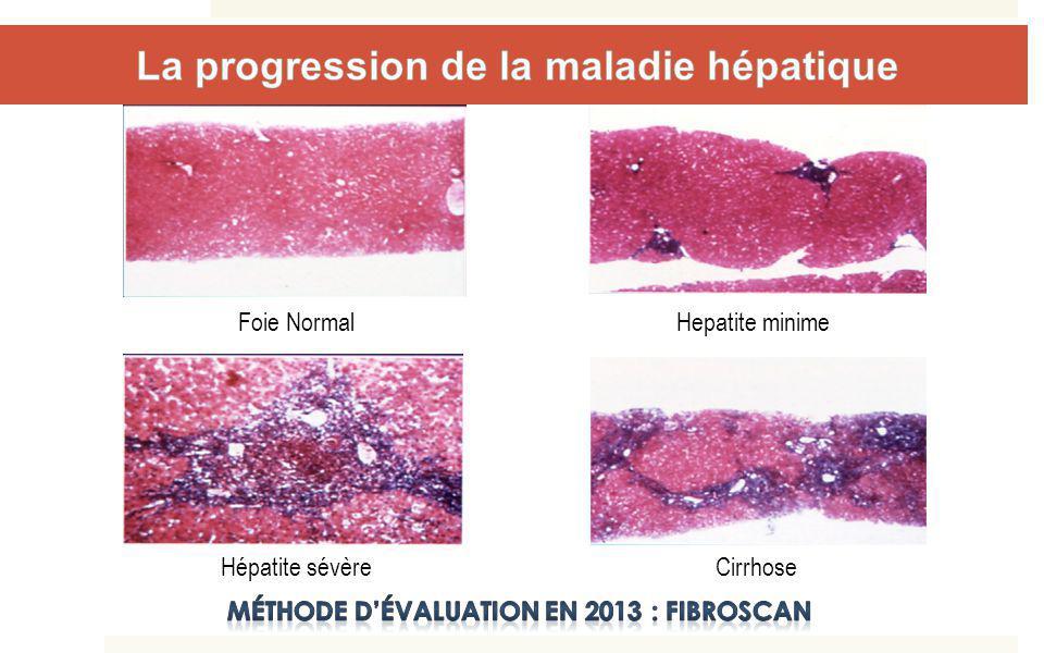 Contage Hépatite aiguë Hépatite chronique Cirrhose compliquée transplantation Guérison spontanée F0 F1 F2 F3 F4 Décès lié à la cirrhose Récidive post TH ++ + + Cancer CHC Délai médian = 38 ans Délai médian =7 à 25 ans + Histoire naturelle du VHC et de la co- infection avec le VIH