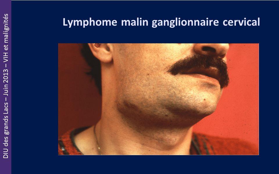 DIU des grands Lacs – Juin 2013 – VIH et malignités Lymphome malin ganglionnaire cervical