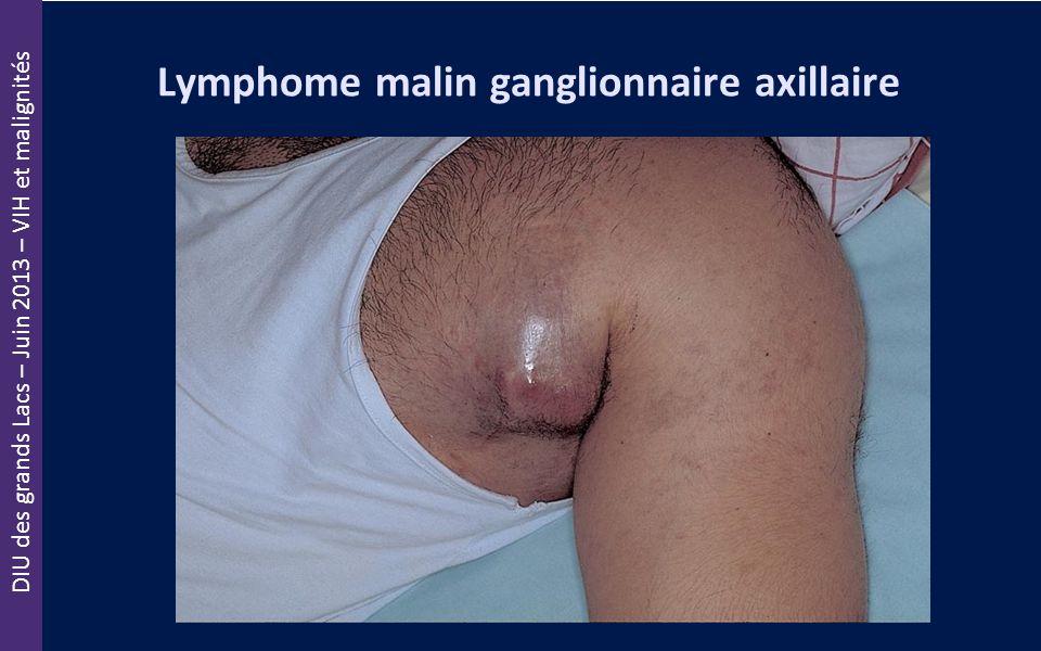 DIU des grands Lacs – Juin 2013 – VIH et malignités Lymphome malin ganglionnaire axillaire