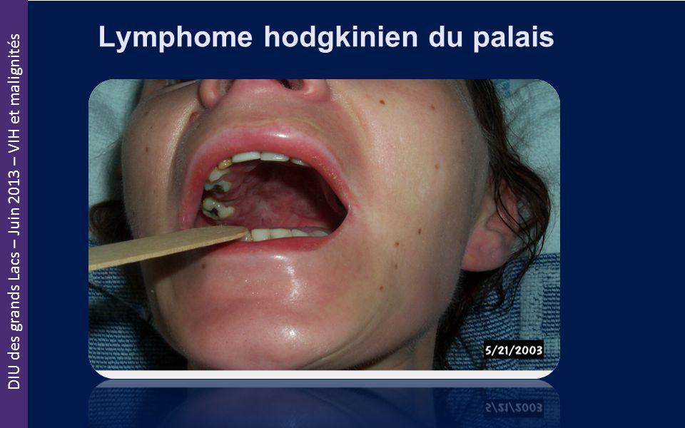 DIU des grands Lacs – Juin 2013 – VIH et malignités Lymphome hodgkinien du palais
