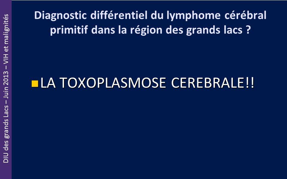 DIU des grands Lacs – Juin 2013 – VIH et malignités Diagnostic différentiel du lymphome cérébral primitif dans la région des grands lacs ? LA TOXOPLAS