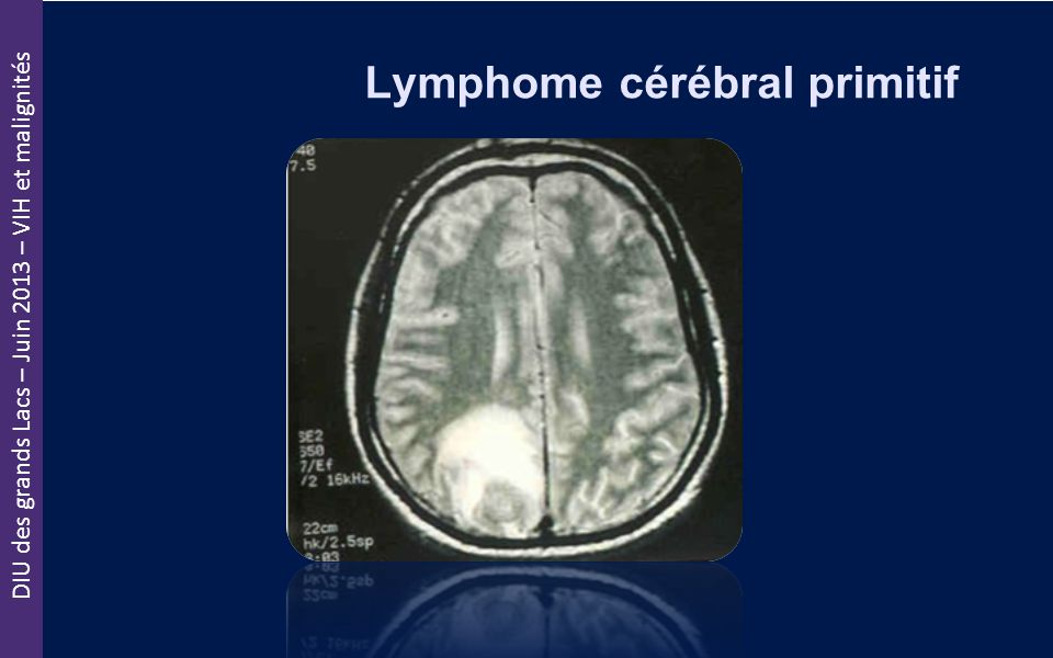 DIU des grands Lacs – Juin 2013 – VIH et malignités Lymphome cérébral primitif