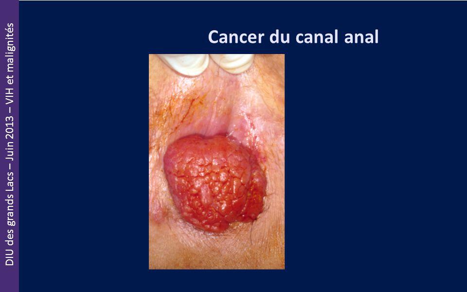 DIU des grands Lacs – Juin 2013 – VIH et malignités Cancer du canal anal
