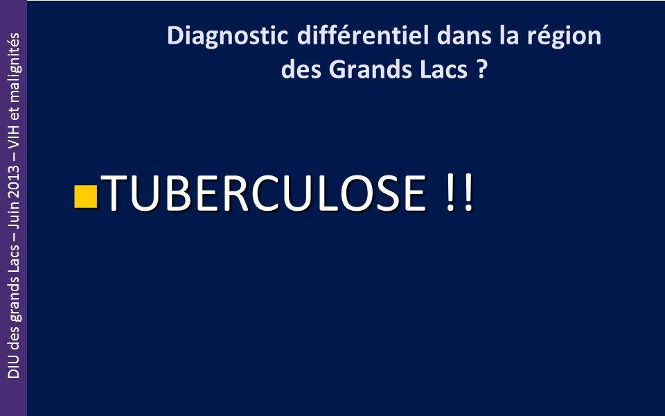 DIU des grands Lacs – Juin 2013 – VIH et malignités Diagnostic différentiel dans la région des Grands Lacs ? TUBERCULOSE !! TUBERCULOSE !!