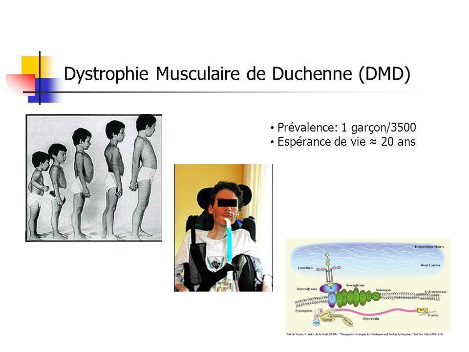 Dystrophie Musculaire de Duchenne (DMD) Prévalence: 1 garçon/3500 Espérance de vie 20 ans