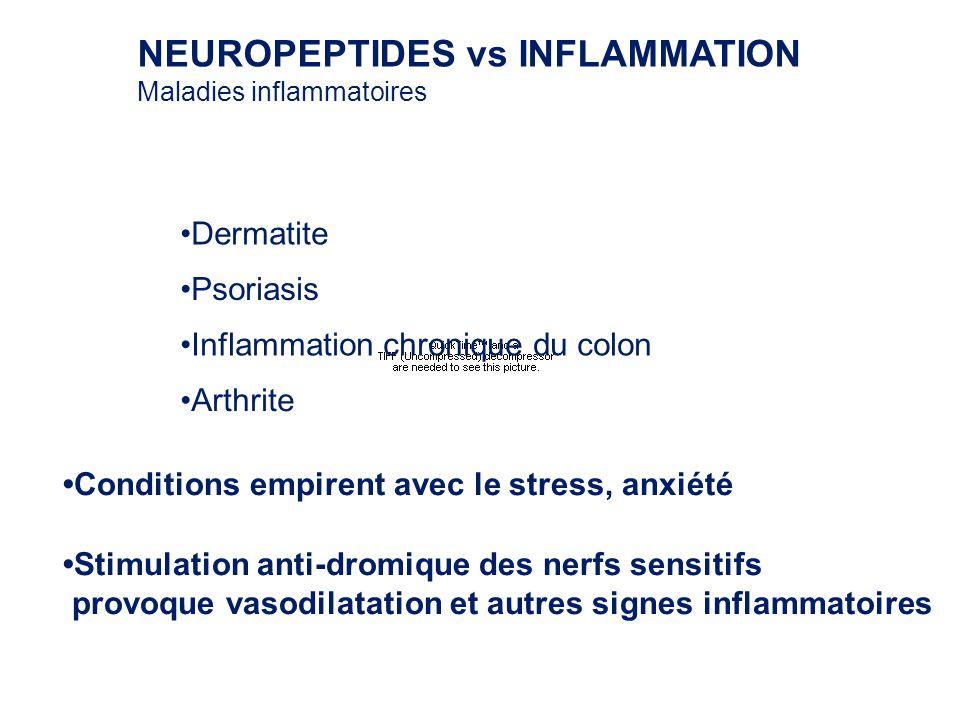 NEUROPEPTIDES vs INFLAMMATION Maladies inflammatoires Dermatite Psoriasis Inflammation chronique du colon Conditions empirent avec le stress, anxiété